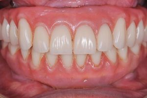 ALL ON 4 DENTAL IMPLANT RESTORATION